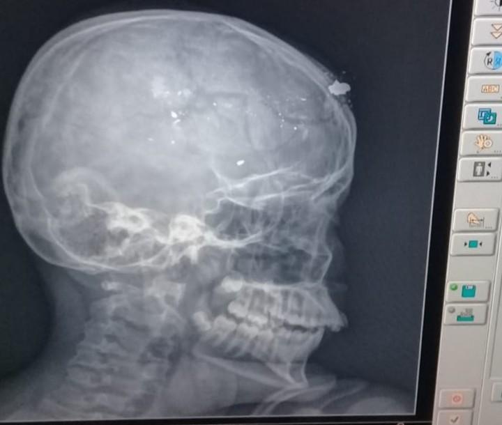Adolescente atira acidentalmente na cabeça de irmão com arma do pai, no Sertão da PB - Notícias - Plantão Diário