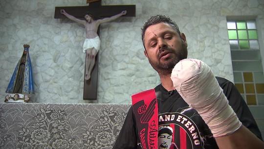 """Torcedor do Athletico que perdeu a mão fala do acidente: """"Poderia ter explodido na minha cara"""""""