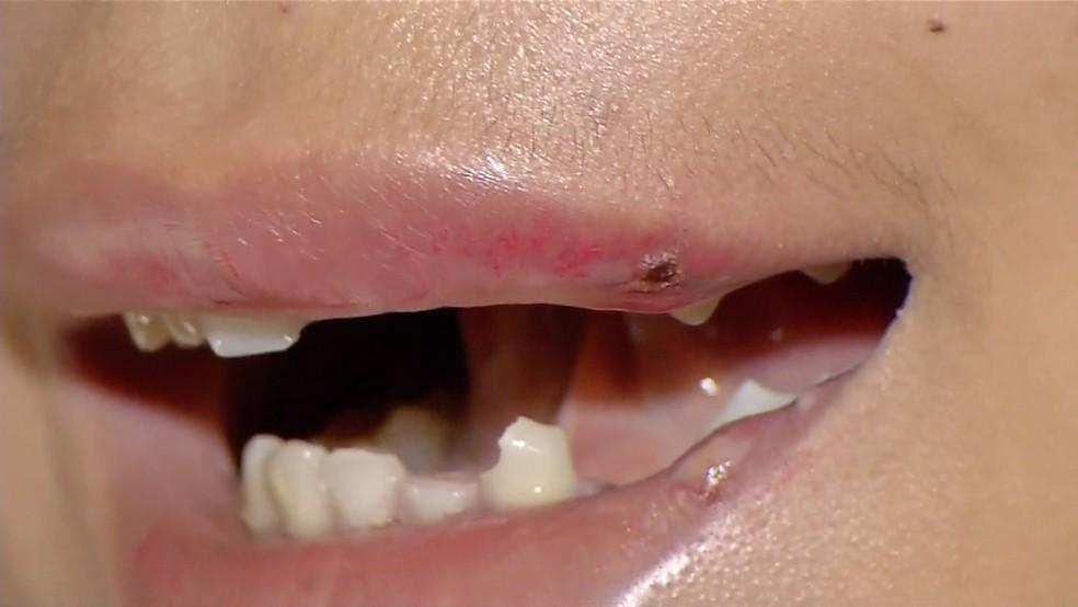 Adolescente teve os dentes quebrados — Foto: TVCA/ Reprodução