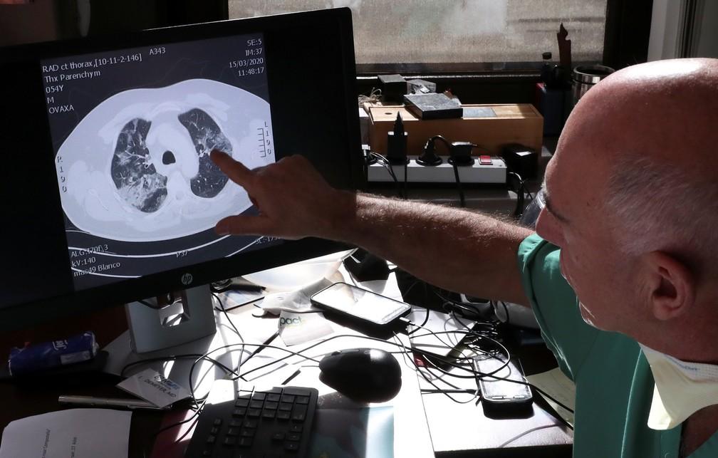 Exame mostra efeitos da Covid-19 causados pelo novo coronavírus (Sars-Cov-2) nos pulmões — Foto: Yves Herman/Reuters