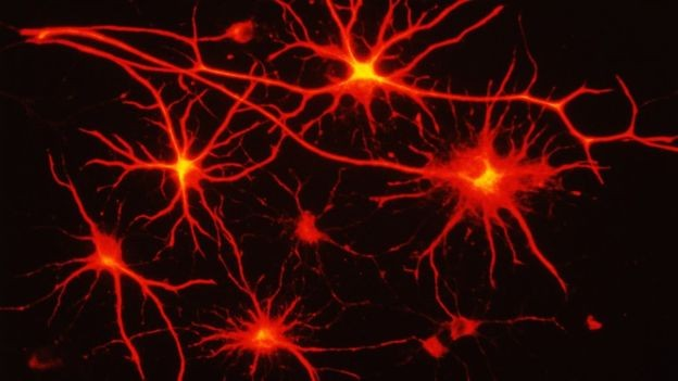 Diamond e sua equipe estudaram a importância dos astrócitos, um tipo de célula cerebral (Foto: SCIENCE PHOTO LIBRARY, via BBC News Brasil)