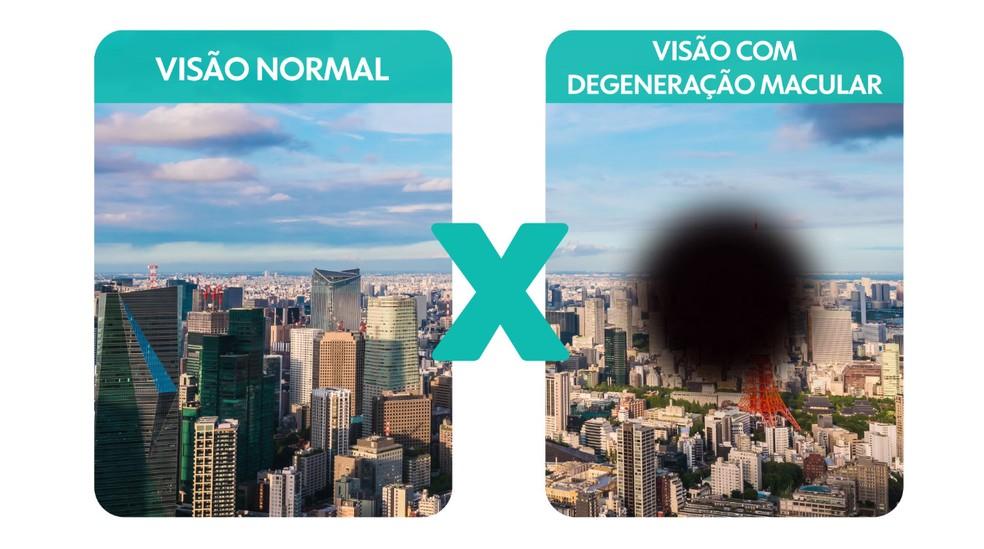 A visão do idoso sofre alterações fisiológicas e naturais do envelhecimento — Foto: Arte/TV Globo