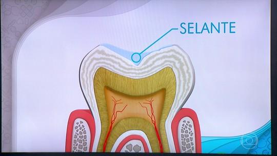 Aparelho, cárie, escovação e placa de contenção; Bem Estar fala sobre os cuidados com os dentes