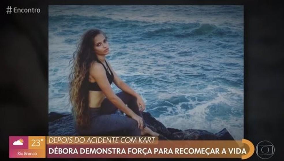 Débora tinha um cabelo longo antes do acidente na corrida de Kart  — Foto: TV Globo