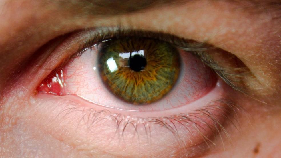 A prevalência da doença é três vezes maior e a chance de cegueira seis vezes maior em latinos e afrodescendentes em relação aos caucasianos. — Foto: Reprodução