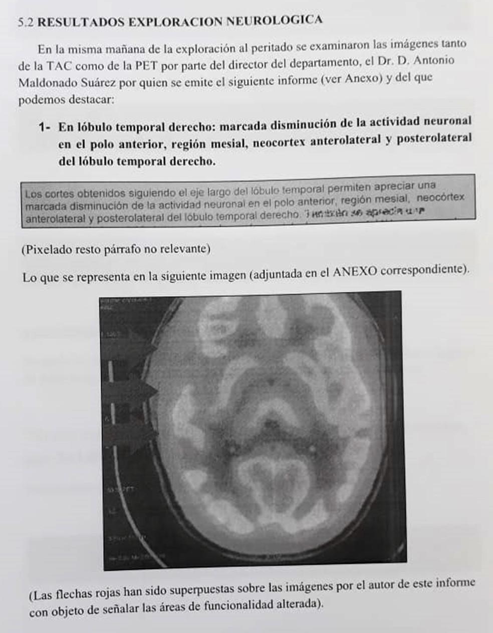 Perícia neurológica de imagens apontou anomalias em área do cérebro de Patrick Gouveia — Foto: Reprodução
