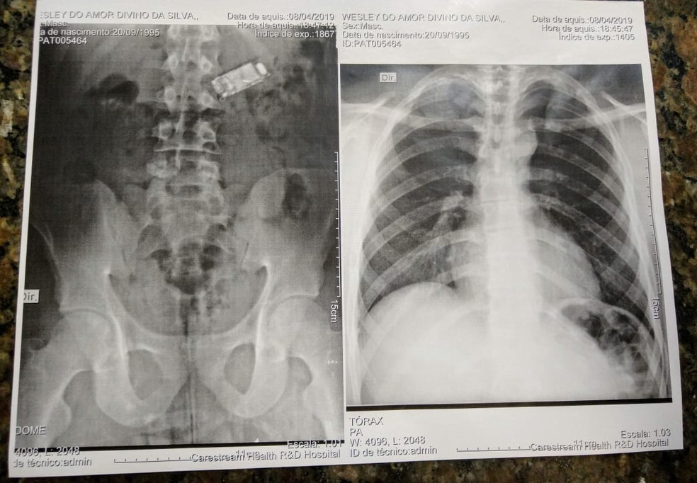 Raio-X mostra celular no estômago de um preso em Sinop — Foto: Sesp-MT/Assessoria