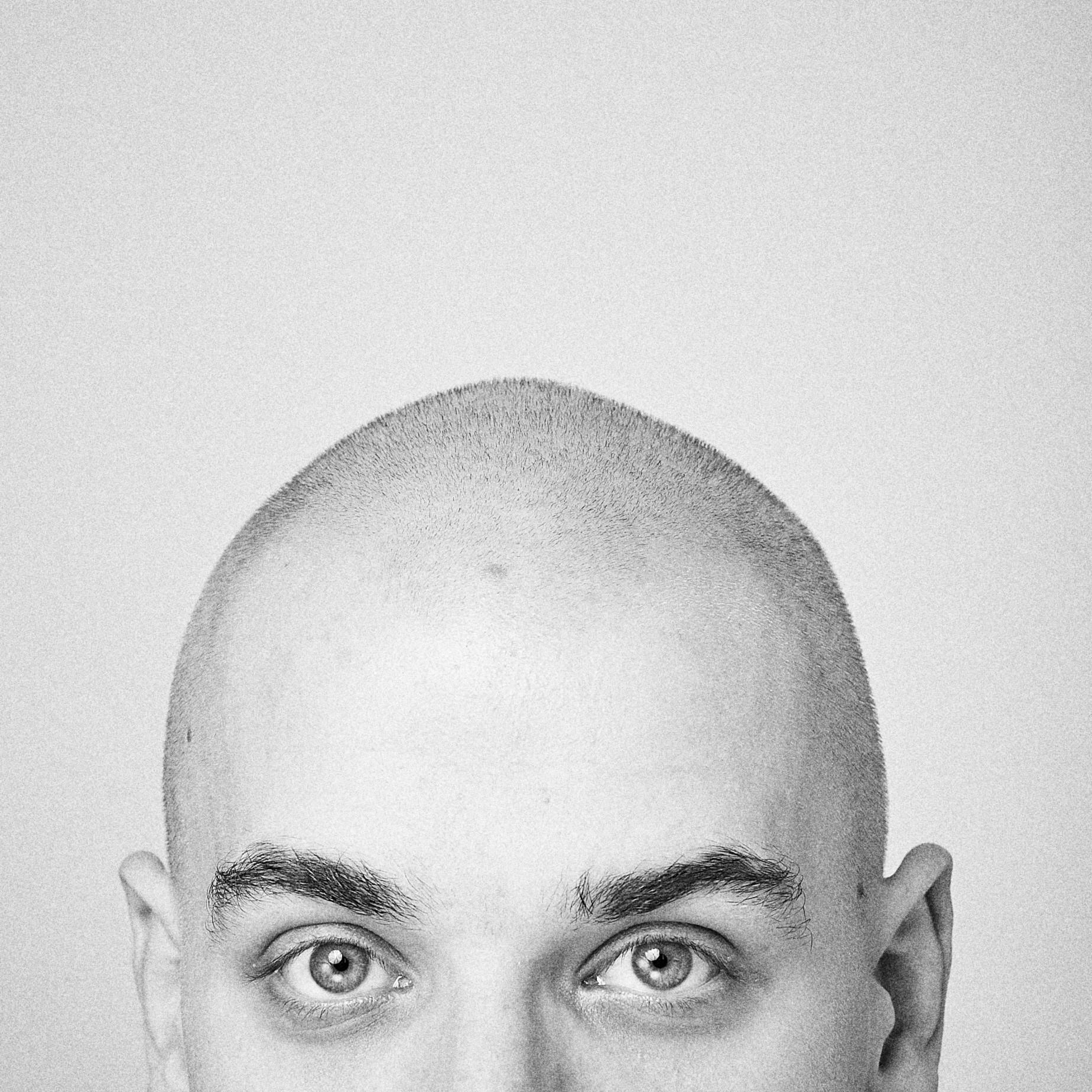 A perda de cabelo atinge um quarto dos brasileiros entre 20 e 25 anos (Foto: Getty Images / Aleksej Teles for EyeEm)