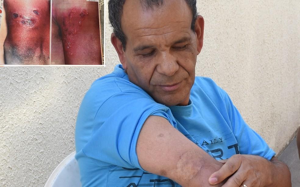 Marido de Luiza Odet, Kardec Sebastião dos Santos sofreu radioqueimaduras no braço por causa do contato com o césio e teve de fazer enxerto em Goiânia, Goiás (Foto: Paula Resende/ G1)
