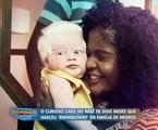 O caso do bebê albino mostrado no Domingo show | Reprodução