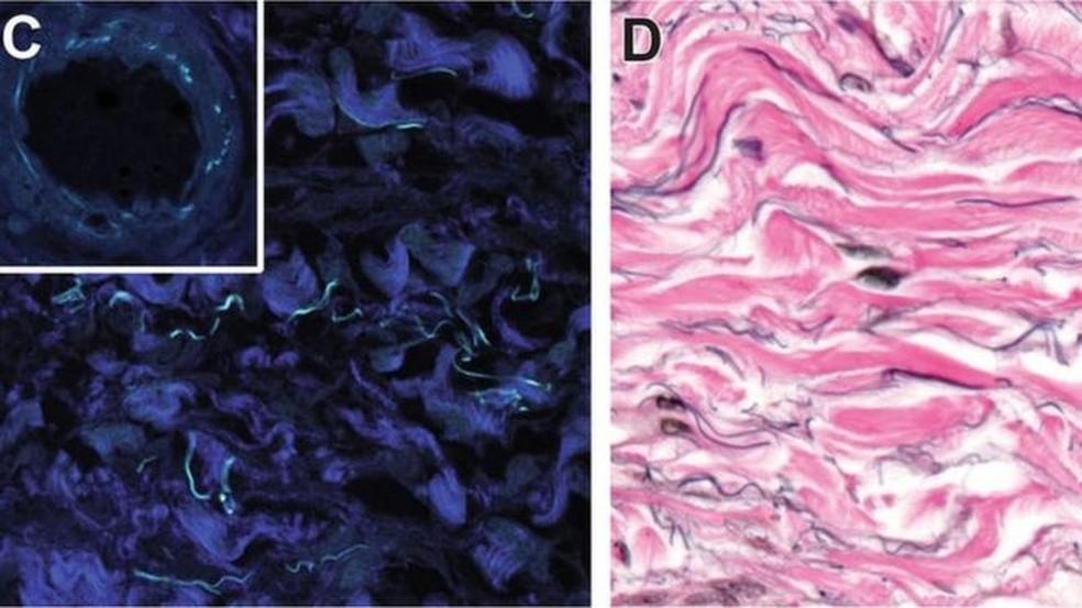 As partes em azul escuro são feixes de colágeno fibrilar. Na imagem à direita, as fibras de elastina são as manchas pretas; as estruturas de colágeno estão em rosa (Foto:  Jill Gregory/Mount Sinai Health System)