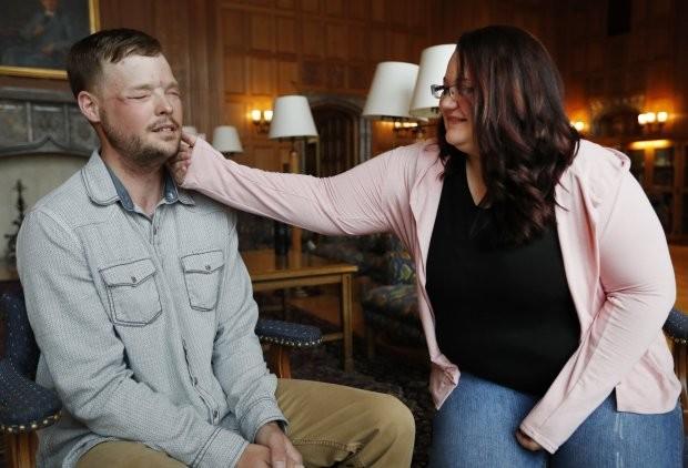 Viúva toca o rosto do marido transplantado em outro homem