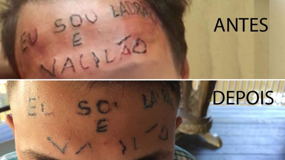 Remoção de tatuagem feita por dupla presa por tortura de jovem em São Bernardo (Foto:  Glauco Araújo/G1)