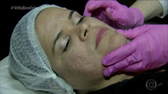 Doença hormonal pode ser a causa da acne em mulheres adultas