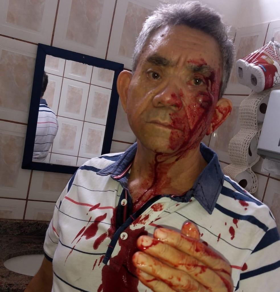 Professor ficou ensanguentado após ser agredido por alunos em Lins — Foto: Arquivo pessoal