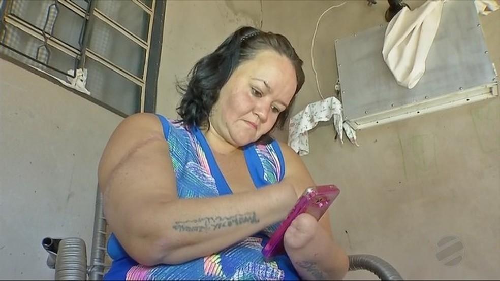 Geisiane teve as duas mãos decepadas — Foto: TVCA/Reprodução