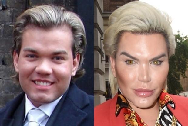 Rodrigo Alves, o Ken Humano, antes e depois das plásticas (Foto: Reprodução/Instagram e BackGrid)