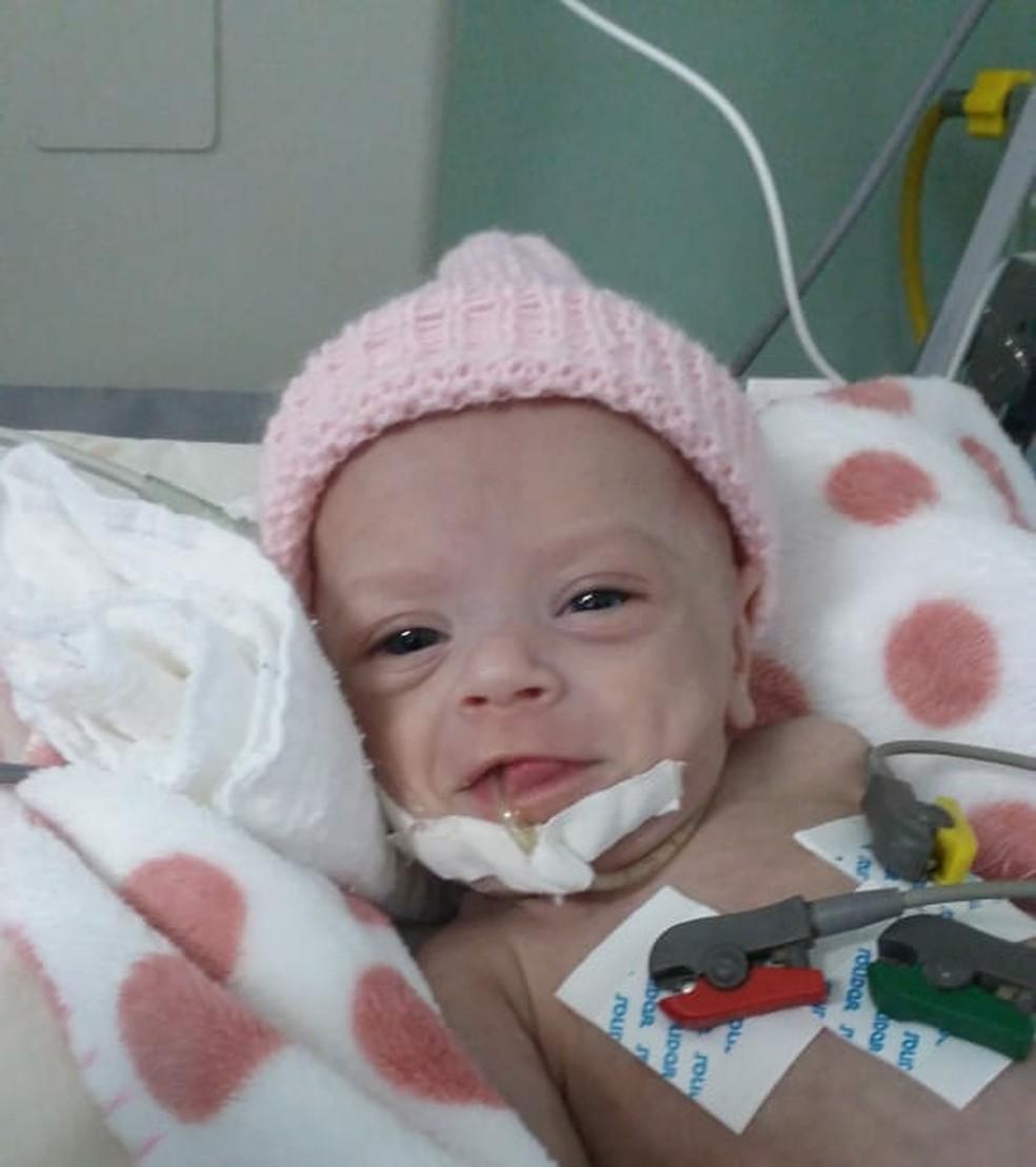 Pais pedem ajuda para custear o tratamento da filha de apenas 2 meses (Foto: Arquivo da família)