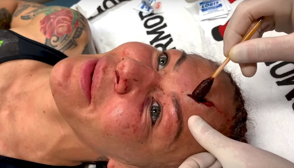 Cris Cyborg levou pontos após corte profundo na testa sofrido durante a luta — Foto: Reprodução / YouTube