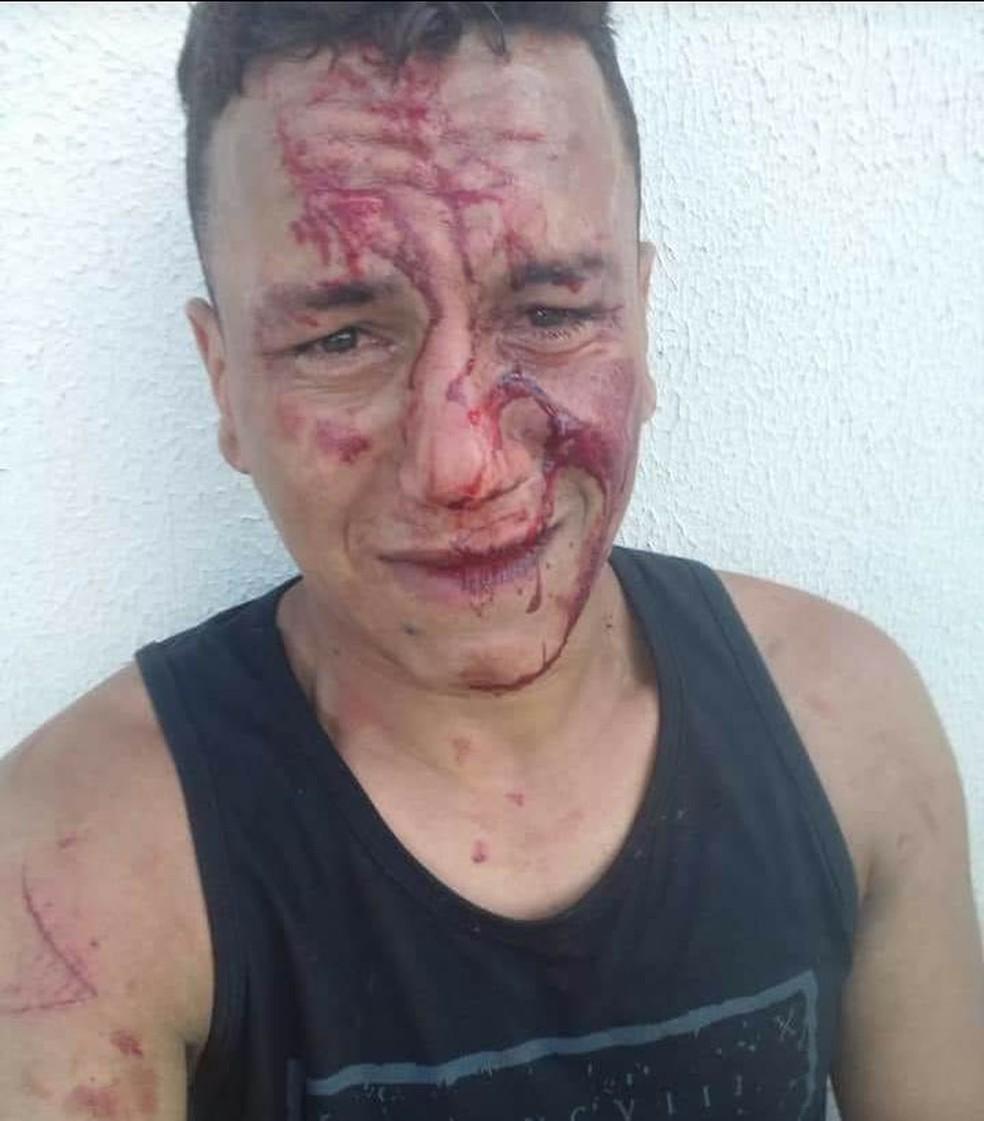 Jovem é agredido e diz ser vítima de homofobia (Foto: Arquivo Pessoal)