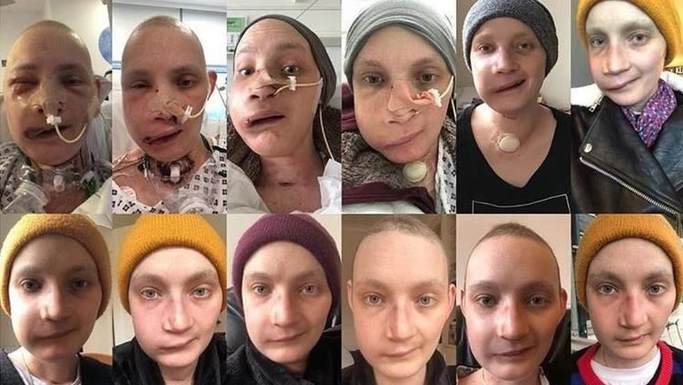 Jen Taylor, de 30 anos, diz que tirar uma foto todos os dias do próprio rosto ajudou a enfrentar as mudanças depois da cirurgia de reconstrução facial — Foto: Jen Taylor/Arquivo Pessoal/BBC