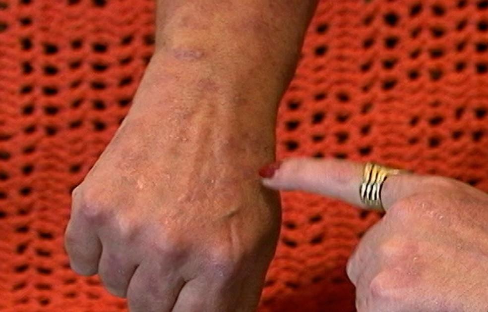 41,8% dos brasileiros que têm doença desenvolvem artrite psoriásica — Foto: Reprodução/TV Diário