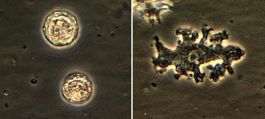 Balamuthia mandrillaris é uma ameba de vida livre (um organismo vivo unicelular) encontrada naturalmente no meio ambiente. Balamuthia pode causar uma rara * e infecção grave do cérebro e da medula espinhal chamada Encefalite Amebiana Granulomatosa (GAE). (Foto: CDC)