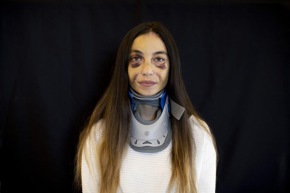Clara Chammas, psicóloga e instrutora de saúde, ferida em seu apartamento durante a explosão do dia 4 de agosto em Beirute, no Líbano — Foto: Hassan Ammar/AP
