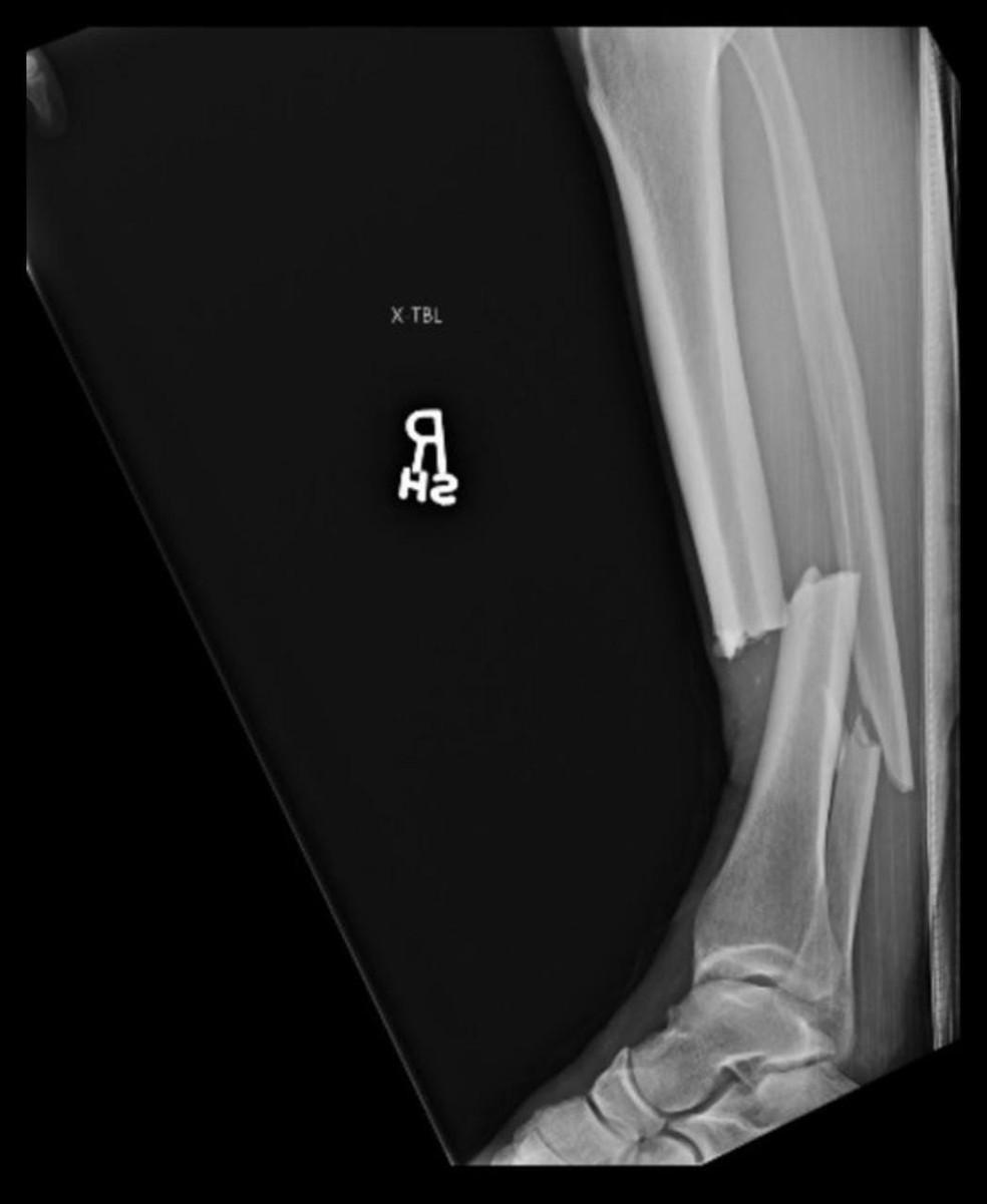 Raio-X da fratura na perna de Chris Weidman — Foto: Reprodução