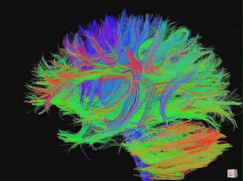 Tecnologia é capaz de identificar palavras por meio da atividade de neurônios no cérebro (Foto: jgmarcelino/ Wikimedia Commons)