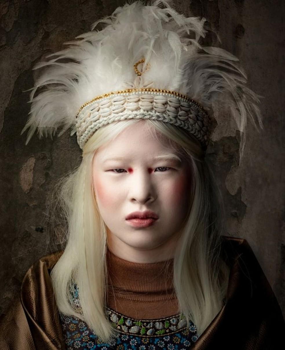 'Na moda, parecer diferente é uma bênção, não uma maldição, e isso me dá uma plataforma para aumentar a conscientização sobre o albinismo' — Foto: KURT GEIGER/BBC