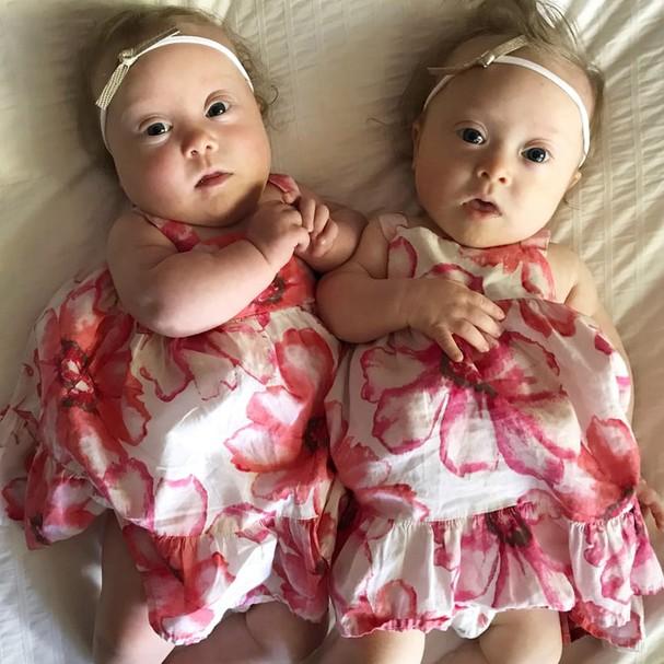 Mãe faz relato poderoso sobre dar à luz gêmeas com síndrome de down (Foto: Divulgação)