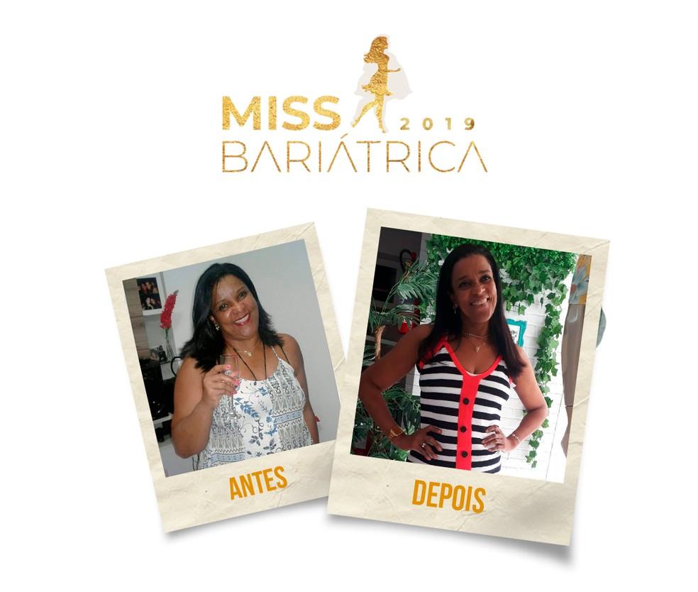 Ana Maria Rocha, 51 anos, candidata do Miss Bariátrica  — Foto: Divulgação