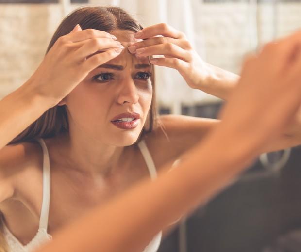 Pele, acne (Foto: Thinkstock)