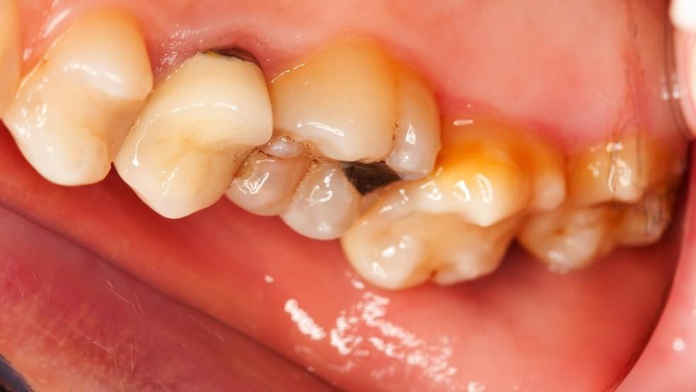Erosão dentária pode causar perda de dentes (Foto: Getty Images)