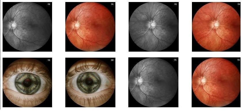 Imagens do Eyer, dispositivo acoplado a um smartphone que examina a retina e detecta retinopatias (Foto: Divulgação/Agência FAPESP)