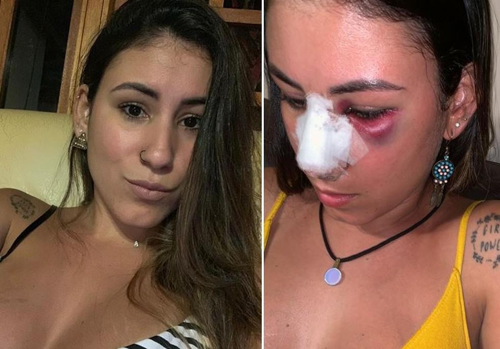 Ana Cristina ficou ferida após ser agredida em Florianópolis — Foto: Arquivo pessoal