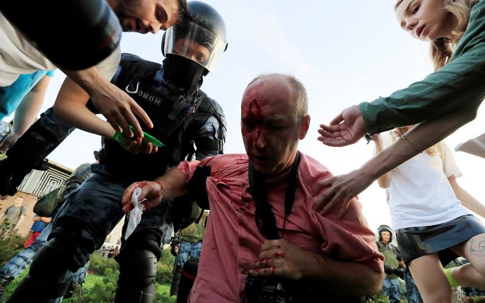 Homem ferido durante concentração para protesto na Rússia — Foto: Tatyana Makeyeva/Reuters