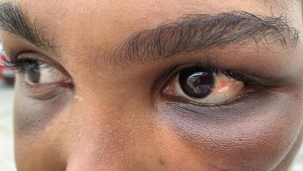 Vítima mostra marcas das agressões sofridas  — Foto: Victor Silveira/TV Bahia