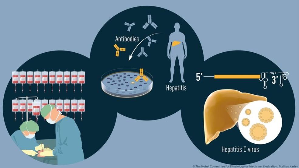 Harvey J. Alter, Michael Houghton e Charles M. Rice fizeram descobertas seminais que levaram à identificação de um novo vírus, o vírus da hepatite C. — Foto: Nobel