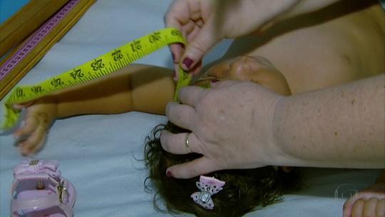 Mutirão no Hospital das Clínicas descarta microcefalia em 57 bebês