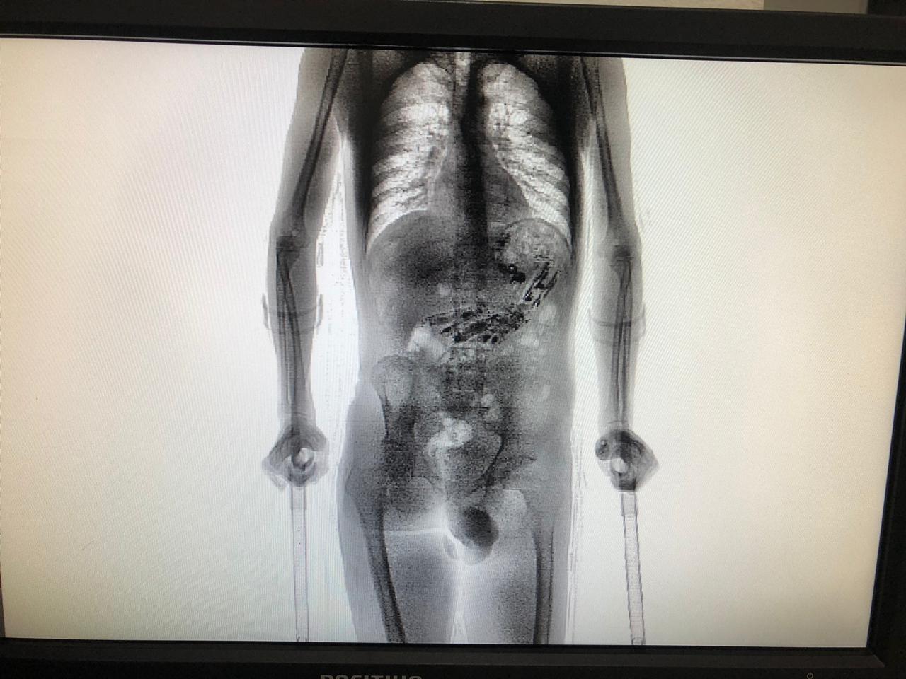 Vídeo que mostra mulher após ser espancada, preso com 10 celulares no estômago e as mais lidas do G1 SC - Noticias