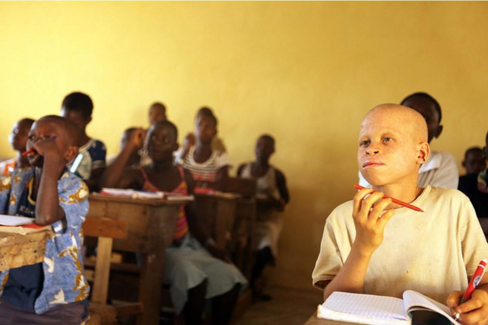 Albinismo é mais frequente em países da África  (Foto: Organização das Nações Unuidas/ACNUR/H. Caux/Divulgação)