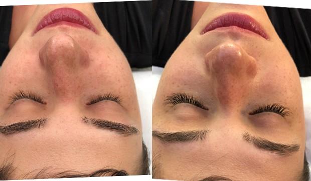 Antes e depois dos cílios da Helena: dá pra ver a diferença! (Foto: Reprodução / Instagram )