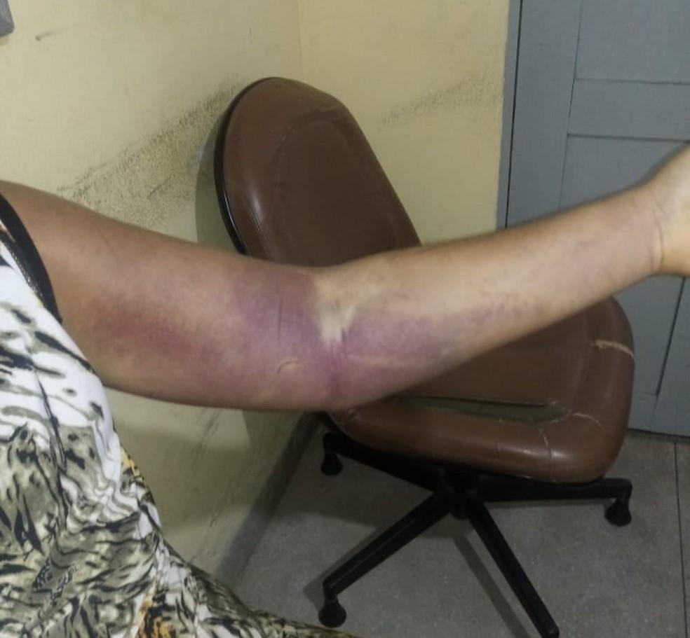 Mulher vítima de cárcere privado apresentava lesões nos braços (Foto: Polícia Militar/Divulgação)