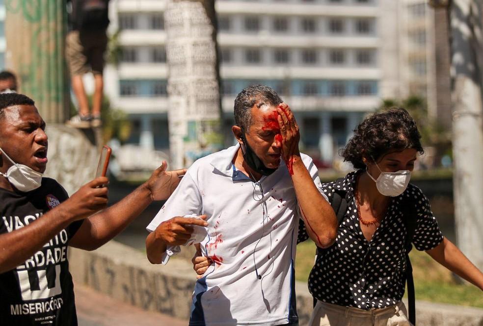 Daniel da Silva perdeu parte da visão após ser atingido no olho por bala de borracha atirada pela PM em protesto contra Bolsonaro — Foto: Hugo Muniz
