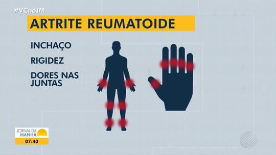 Saúde: ação oferece palestras e consultas gratuitas para a prevenção da artrite reumática