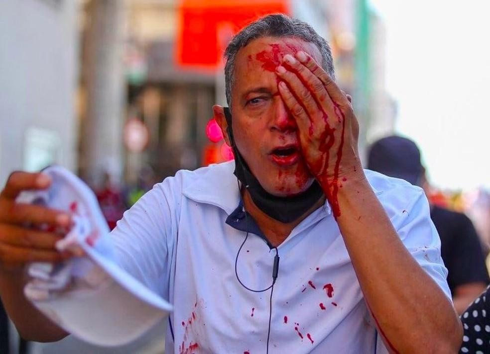 Daniel da Silva foi atingido no olho por bala de borracha atirada pela PM durante protesto contra Bolsonaro no Recife — Foto: Hugo Muniz