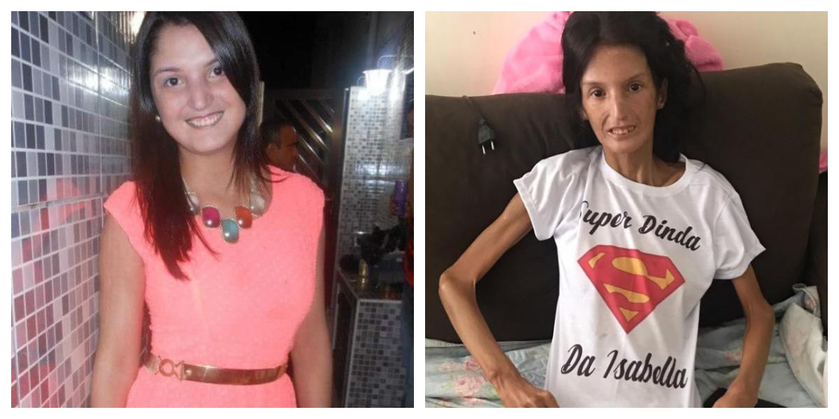 Doença rara faz jovem pesar 34 kg e amigos fazem campanha por ajuda