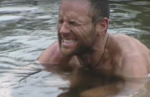 Ainda na segunda temporada, em 2001, Michael Skupin caiu numa fogueira e ficou com várias feridas (Foto: Reprodução)